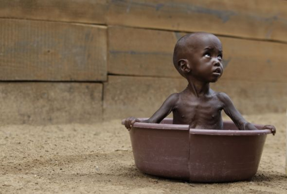 Photo credit: AP | Two-year-old, Aden Salaad, looks up toward his mother, unseen, as she bathes him in a tub at a Doctors Without Borders hospital, where Aden is receiving treatment for malnutrition, in Dagahaley Camp, outside Dadaab, Kenya, Monday, July 11, 2011.