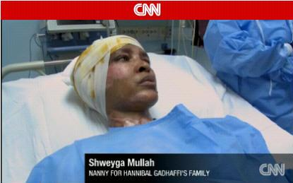 shweyga-mullah-after-burned-by-gaddafi-son-wife-aline-scaf