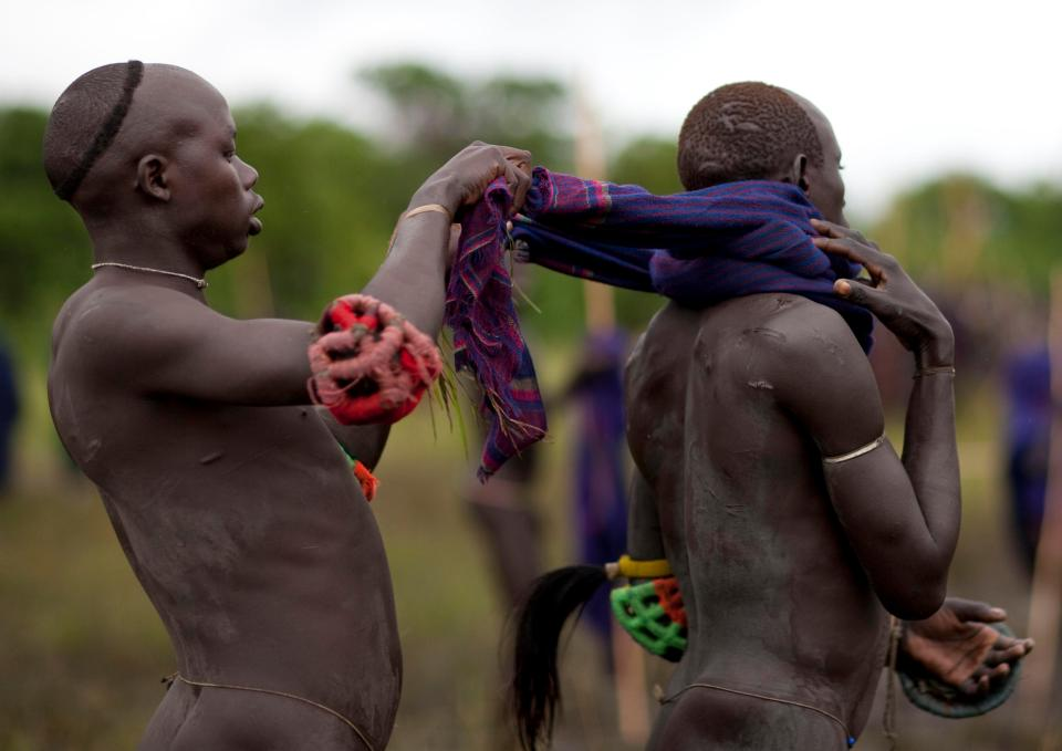 Fighters can hit any part of his opponent's body. The scars on this man's back appears to show this is not his first Donga festival