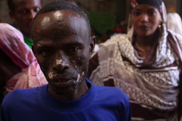 One of the Ethiopians who have been victims of ethnic violence